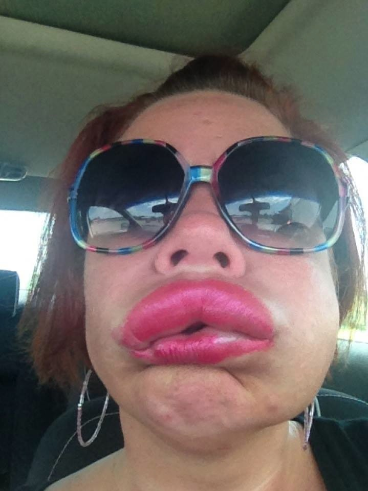 Allergic reaction to lipstick